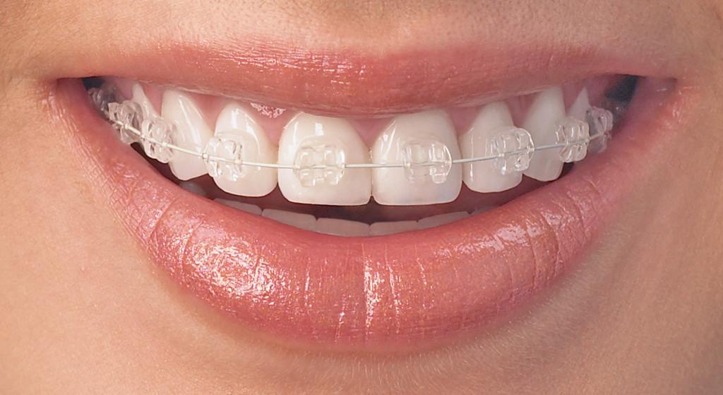 AO Teeth-Radiance
