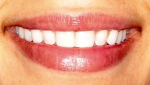 the results after teeth whitening by our London dentist