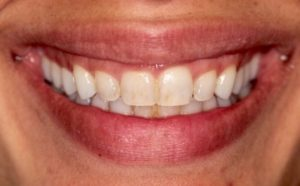 before teeth whitening in Harley Street, London