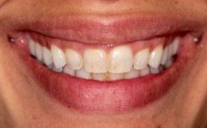 before teeth whitening in Harley Street, London