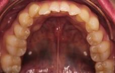 Bottom teeth before Invisalign