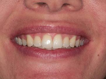 After treatment with Invisalign in Harley Street, London