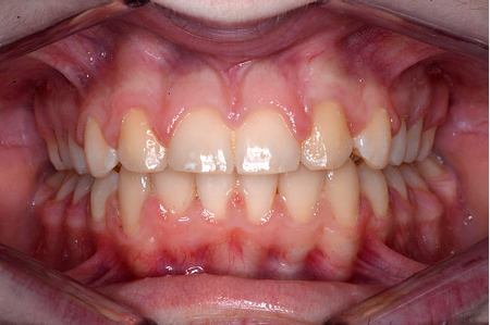 After treatment for missing teeth