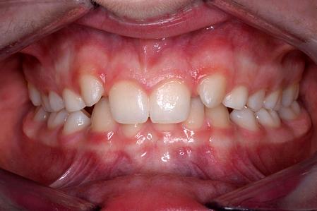 Missing Teeth – Hypodontia Treatment | 128 Harley Street Dental