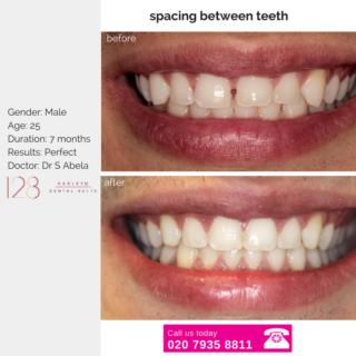 closing the spaces between teeth