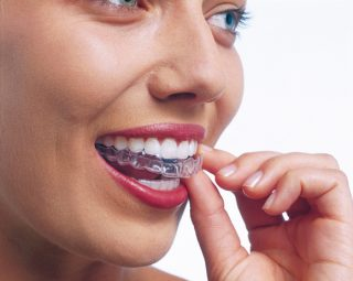 Invisalign-placement-of-the-Aligner