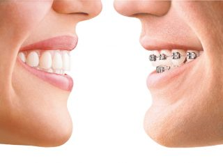 Invisalign-vs-Conventional