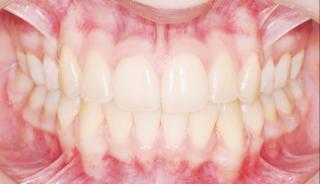 after-braces-1024x588