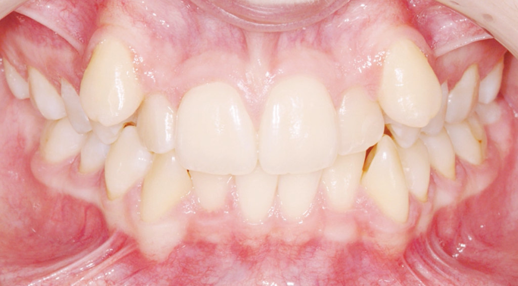 before-braces-1024x566