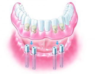 denture-implant-1024x791