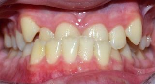 Lower crossbite