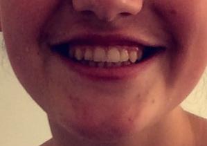 Lisa-ohne-Zahnspange