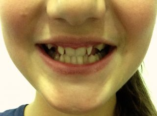 Lisa-vor-Zahnspange