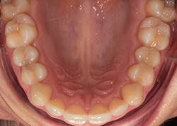 Top teeth after Invisalign