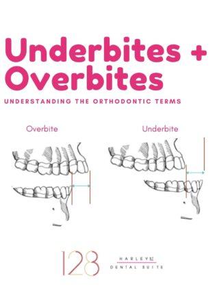 Underbites v overbites